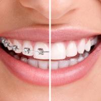 dublin-orthodontics